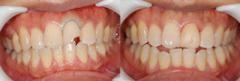 瓷贴面有效修补轻度牙齿损伤
