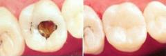 补牙让龋齿不再成为你的痛