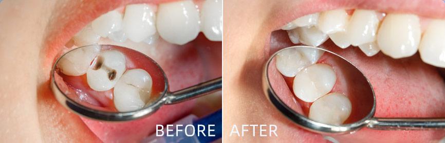 3M树脂补牙
