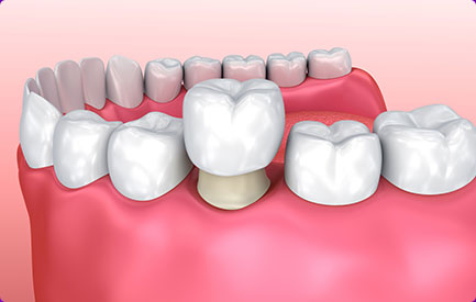 晶瓷3D全锆牙