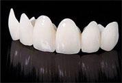 尊贵型全瓷牙